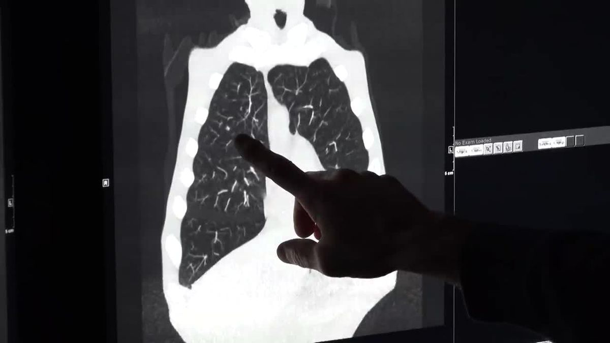 Sentara Martha Jefferson Monday: Early Detection of Lung Cancer Helps Save Lives