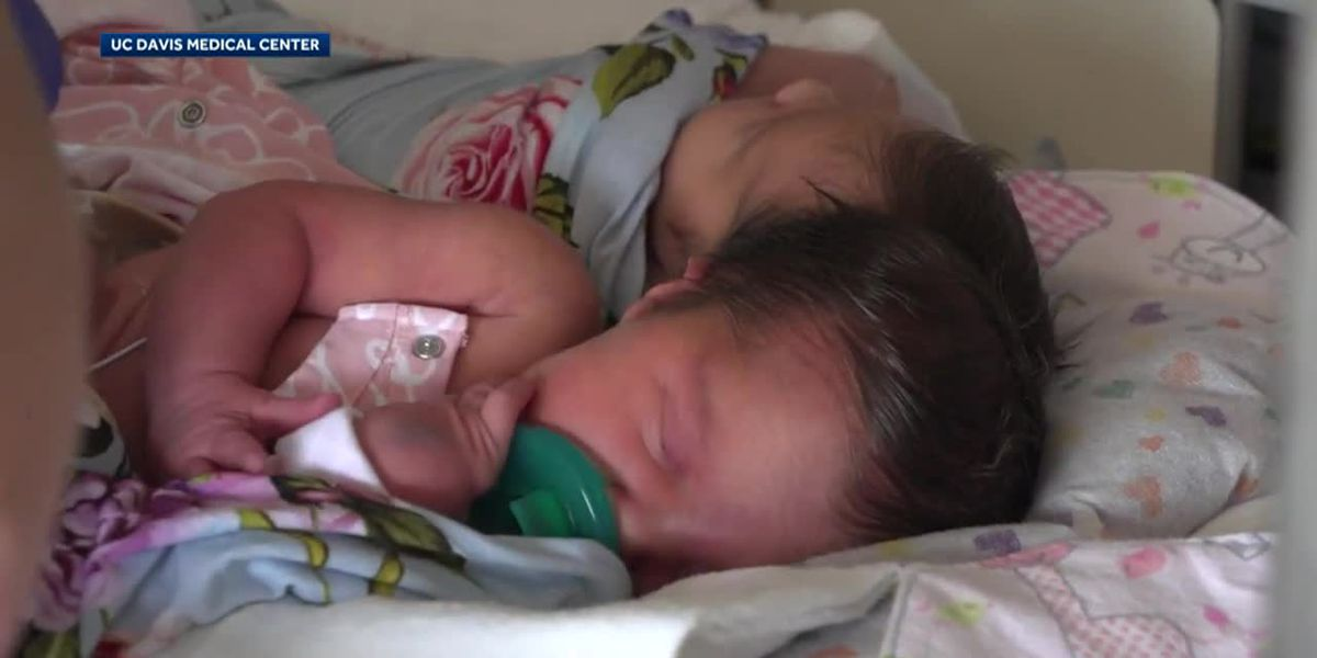 Conjoined twins separated after lengthy surgery
